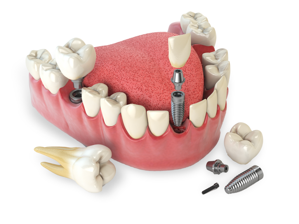 dental model showing dental implant A tooth model showing bone graft Chattanooga TN